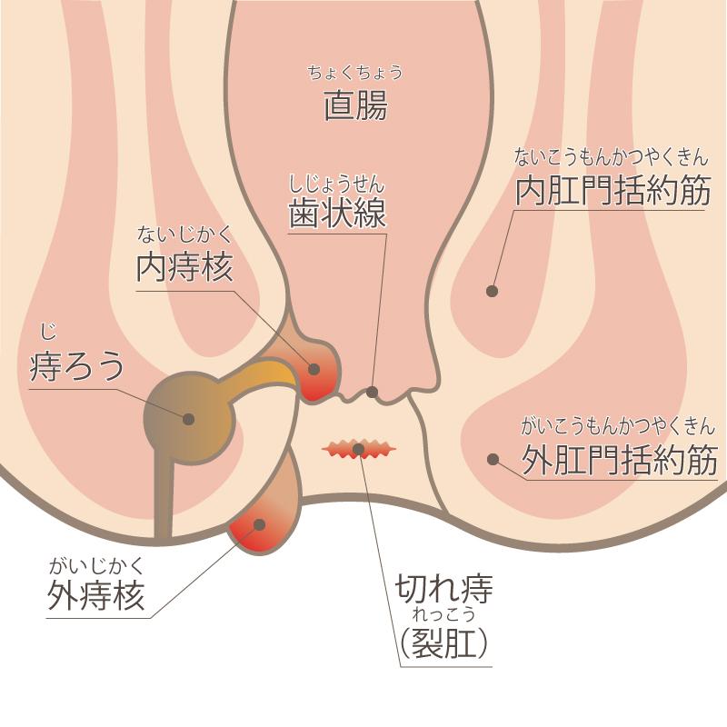 痔の症状の分類